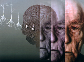 Graphic depicting Alzheimer's and Parkinson's diseases